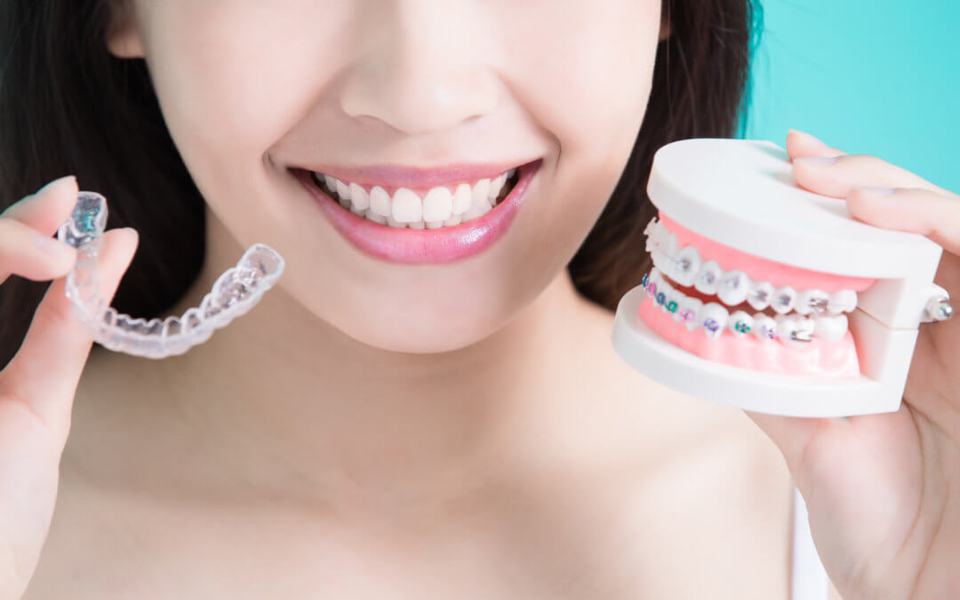 clear braces vs invisalign